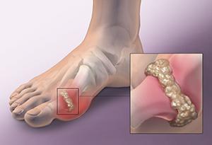 節後痛風患者增多 專家建議個性化用藥