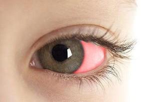 科普|眼白一片鮮紅就是眼底出血嗎?